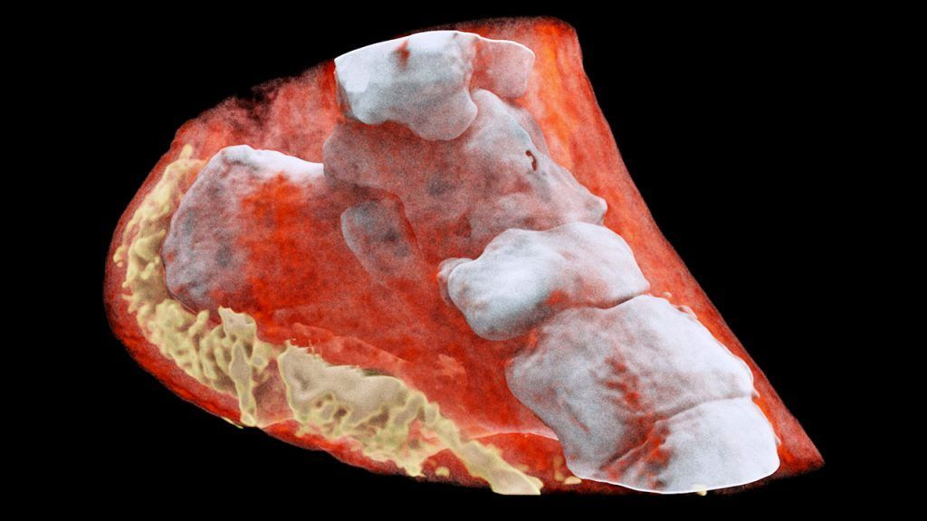 The future of X-ray: in color and 3D