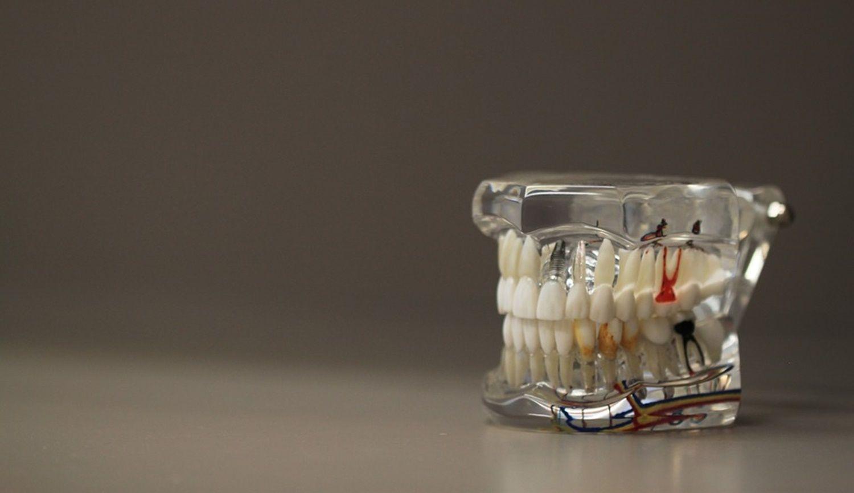 How the Ninsaúde Apolo odontogram works